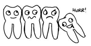 wisdom-teeth2
